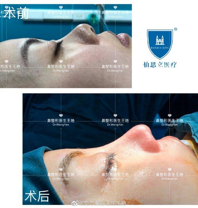 2020年上海做鼻子的知名专家 2020年上海隆鼻鼻综合预约医生排名