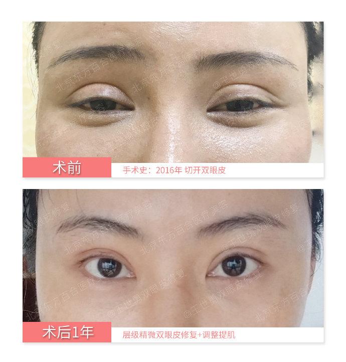 2020年郑永生跟王世勇哪个双眼皮修复好?双眼皮修复医生预约