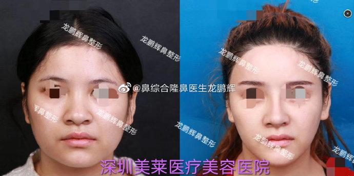 2020年深圳鼻综合的医生排名:向宏伟陈桂飞罗志敏尹卫民牛克辉龙鹏辉
