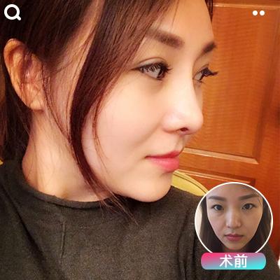 2020年重庆鼻综合医生排名:杨健陈玉连章小平魏恒李光强哪个厉害?