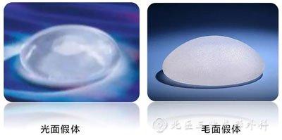 北医三院尹诗璐:隆胸假体选择光面假体还是毛面假体好?