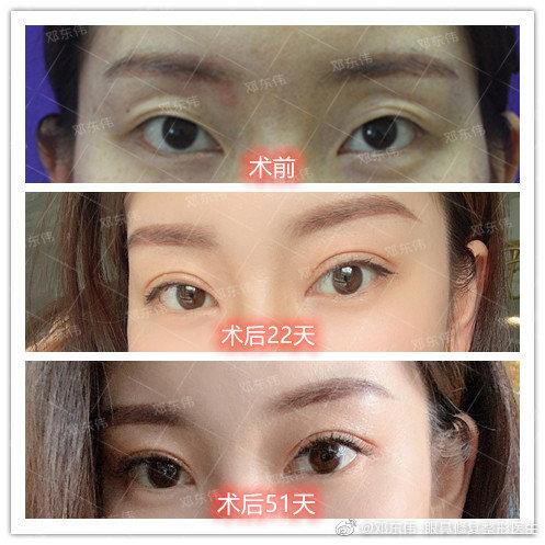 邓东伟割双眼皮案例