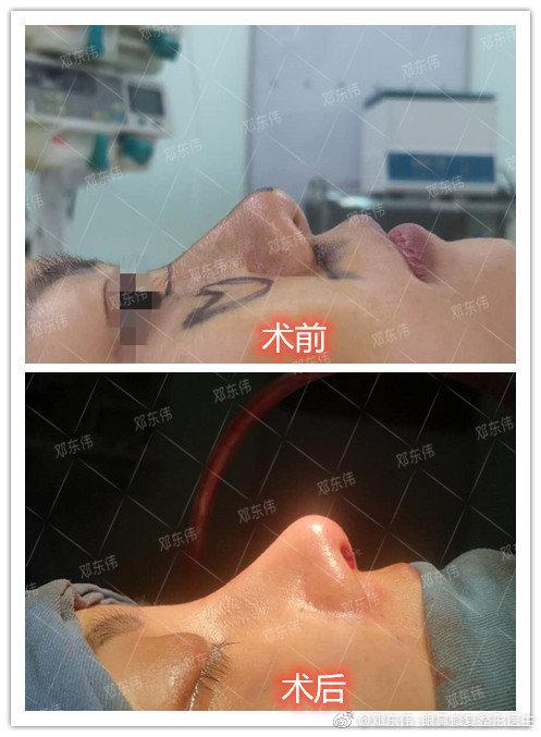 邓东伟鼻综合案例