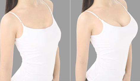 自体脂肪丰胸前后对比图二