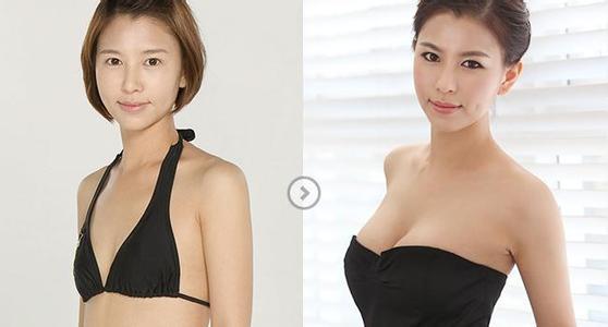 自体脂肪丰胸前后对比图三
