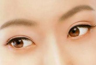 靳小雷刘风卓赵红艺张海明做双眼皮究竟哪个好?