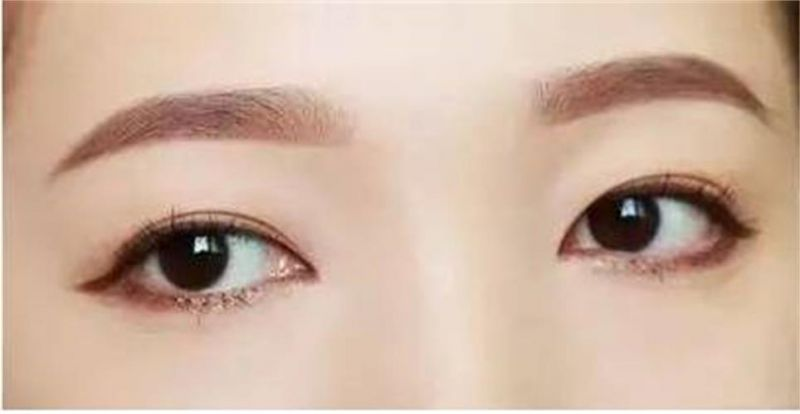 王振军和赵惠春双眼皮修复眼睛整形谁做得好?