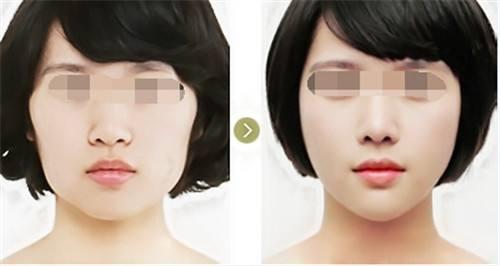圣嘉荣黄大勇有自己的专利技术吗?黄大勇改脸型技术怎么样?