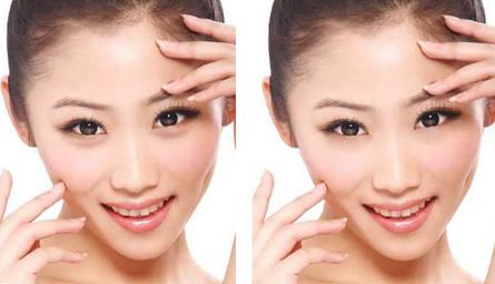 广东汪海滨做双眼皮自然吗?广东汪海滨做双眼皮技术好吗?