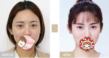 南京双眼皮修复权威专家排行榜 南京最好的双眼皮修复专家排名 南京最好的双眼皮修复专家有哪些?