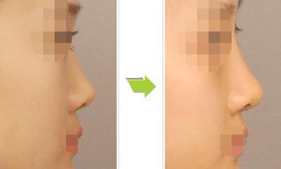 南京隆鼻专家排行榜 南京隆鼻最好的专家排行榜 南京隆鼻最好的专家有哪些?