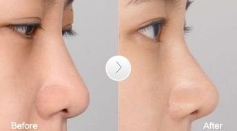 合肥隆鼻专家排行榜 合肥隆鼻最好的专家排名