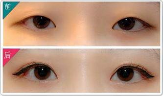 长沙双眼皮修复专家排行榜 长沙双眼皮修复最好的专家排名 长沙双眼皮修复最好的专家有哪些?