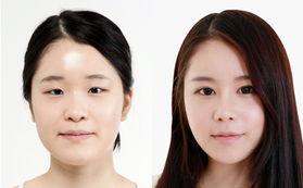 太原隆鼻专家排行榜 山西太原最好的隆鼻专家排名