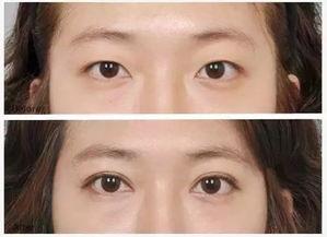 昆明双眼皮修复专家有哪些?昆明双眼皮修复最好的专家排行榜