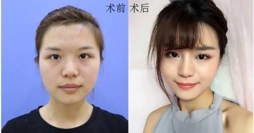 北京做面部年轻化专利技术的医院有哪些?