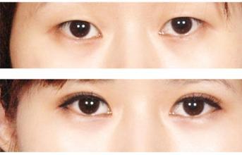 南京做双眼皮好的医生和医院,大概价位多少