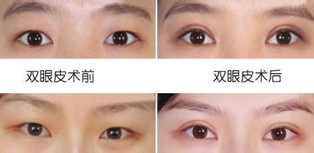 武汉做双眼皮最好的整形医生和整形医院排行榜