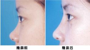 中国权威鼻修复专家有哪些?