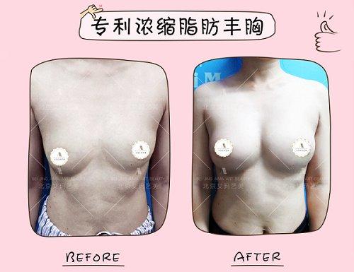 北京自体脂肪丰胸哪个医生做的好?专利技术都有哪些?
