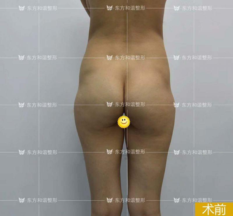 北京自体脂肪丰臀案例,哪个医生做的好?自体脂肪丰臀费用多少?