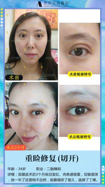 北京艾玛李方奇双眼皮修复技术怎么样?有双眼皮修复案例吗?
