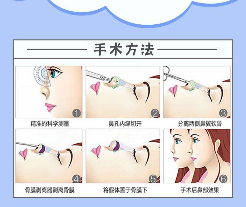 假体隆鼻后悔死了 假体隆鼻后多久可以取出