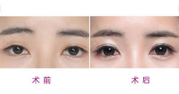 中国最好的双眼皮眼部整形眼修复专家:闫迎军(简介、案例、预约)