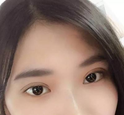 北京知名双眼皮医生和双眼皮修复专家都有哪些?北京最有名字的双眼皮&双眼皮修复专家排名