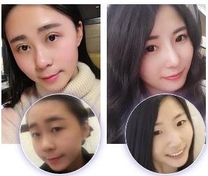 上海九院整形科最厉害的鼻子&鼻修复专家:李圣利(简介、案例、预约)