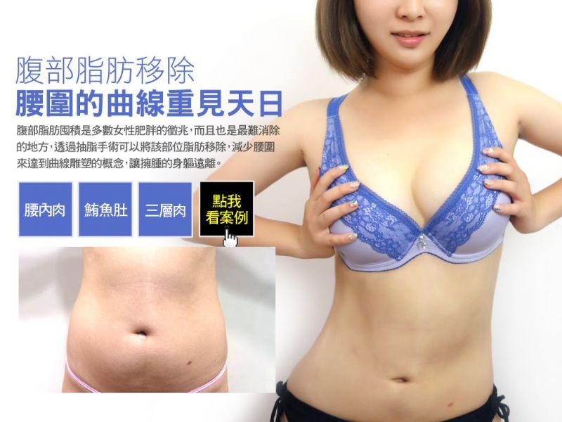 抽脂后就能瘦身了吗?脂肪在人体分布的热门部位有哪些?腹部大腿手臂