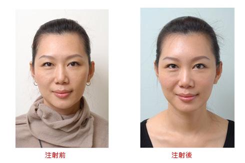 玻尿酸适应部位:下巴额头太阳穴泪沟鼻子 哪些人不能注射玻尿酸?