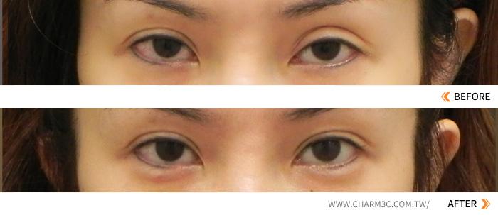 割双眼皮术后两眼不对称怎么办?两眼不对称修复案例详解