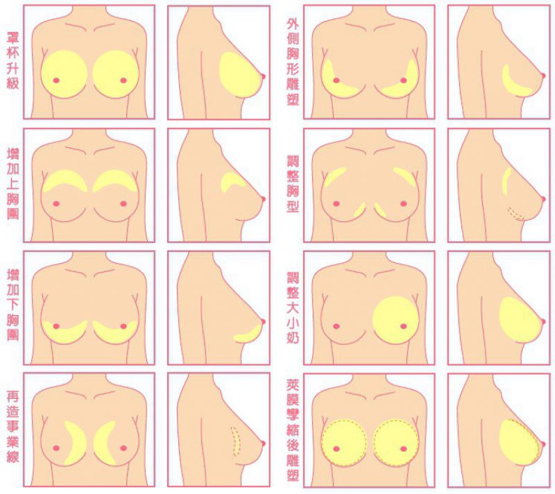 胸小平胸怎么办?最安全的丰胸方法:自体脂肪丰胸