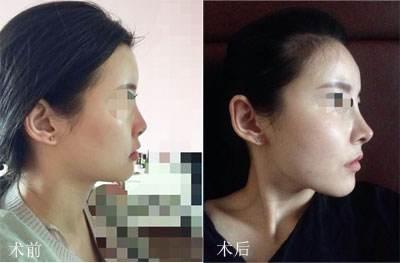 国内最好的鼻修复专家有哪些?国内知名鼻修复专家排名(简介案例预约)