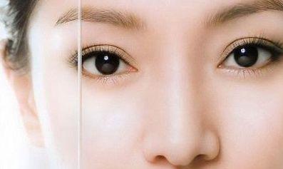 八大处整形赵延勇:双眼皮过宽后悔了怎么办?双眼皮过宽如何修复?