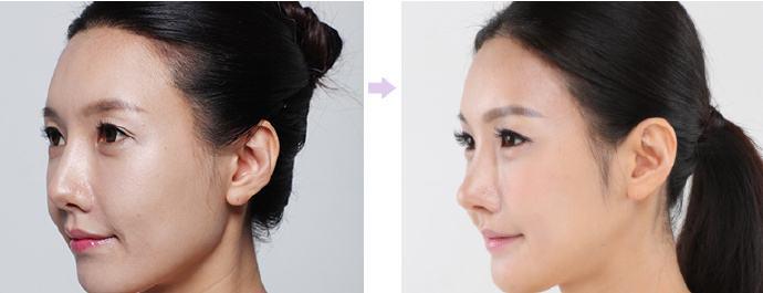 韩国顶级鼻整形专家:郑东学(案例简介价格预约)鼻综合怎么样?