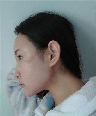 脸胖面部吸脂可以瘦吗?面部吸脂效果可以维持多久?面部吸脂后皮肤是否会松弛?