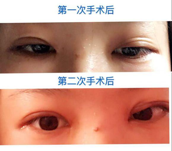 上海九院张余光双眼皮手术致人毁容后悔