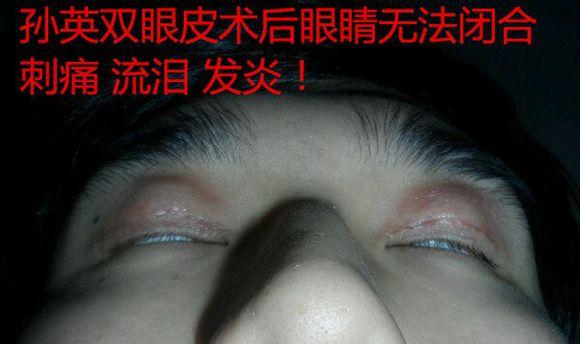 上海九院孙英双眼皮毁容不能睁眼后悔案例