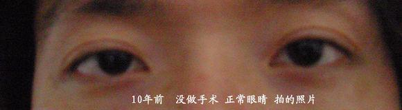 上海九院林晓曦双眼皮整容失败毁容后悔